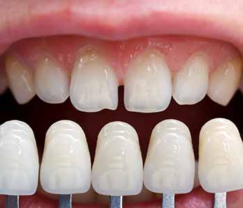 Burr Ridge dental practice offers porcelain veneers
