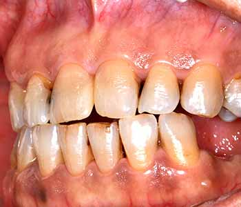 gum therapy treats the causes of gum disease gently in our Burr Ridge