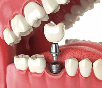 dental implant in the Burr Ridge, IL area