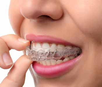 Dentist near Elmhurst proudly offers Invisalign treatment