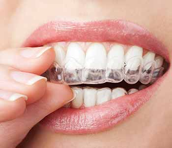 Invisalign work and where can I get treatment in Burr Ridge, IL