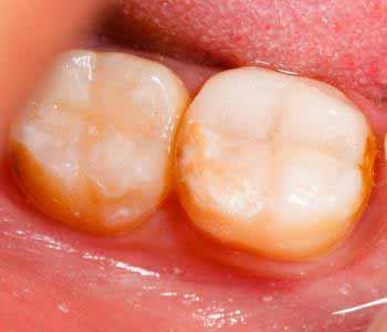 Janet S. Stopka, DDS, PC Elmhurst, IL area dentist offers tooth-colored fillings