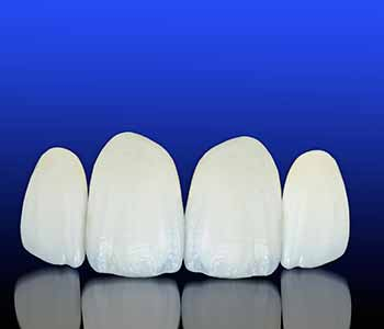 porcelain veneers in a dental office near Orland Park