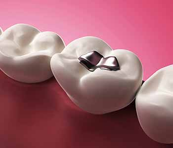 There is a safe way to remove silver or amalgam fillings that contain mercury and Dr. Janet Stopka has invested in the techniques and tools