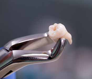 Janet S. Stopka, DDS, PC Understanding the tooth extraction process with dentist in Burr Ridge, IL