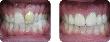 Patient Before After image of Janet S. Stopka DDS - Replace Veneers