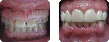 Dentist Burr Ridge - Before After 02
