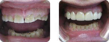 Patient Before After image of Janet S. Stopka DDS - Repair of Chipped and Broken Front Teeth
