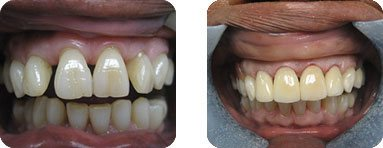 Dentist Burr Ridge - Before After 04