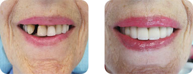 Patient Before After image of Janet S. Stopka DDS - Dental Implants