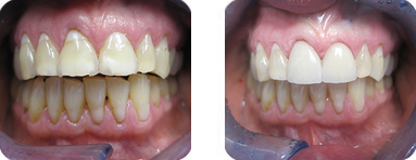 Patient Before After image of Janet S. Stopka DDS - Repair Damaged Teeth