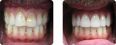 Patient Before After image of Janet S. Stopka DDS - Repair Front Teeth