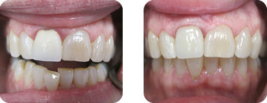 Patient Before After image of Janet S. Stopka DDS - Straighten Crooked Teeth