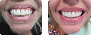 Patient Before After image of Janet S. Stopka DDS - Teeth Whitening