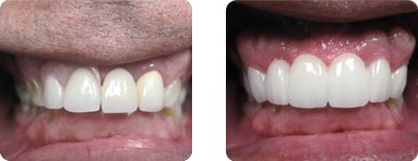 Patient Before After image of Janet S. Stopka DDS - Replace Old Broken Veneers