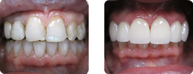 Patient Before After image of Janet S. Stopka DDS - Repair of Worn, Damaged Front Teeth