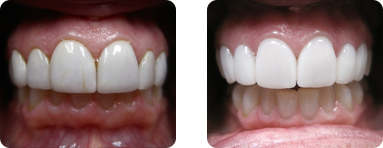 Patient Before After image of Janet S. Stopka DDS - Repair of Front Teeth 2