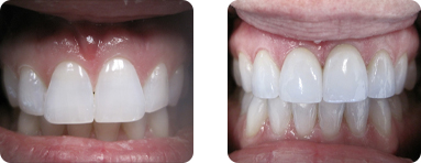 Patient Before After image of Janet S. Stopka DDS - Front Teeth 1